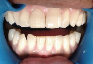 after-cosmetic-sculpture-tooth-dent