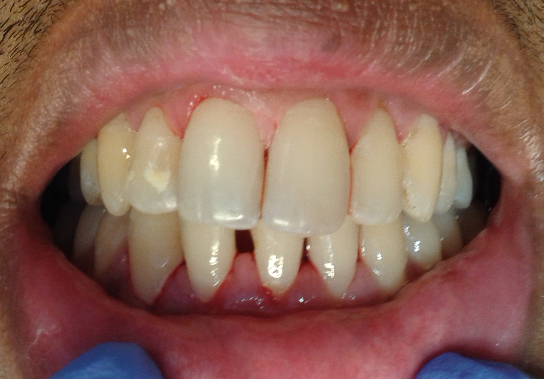 Tooth whitening before and after - French Dentist in