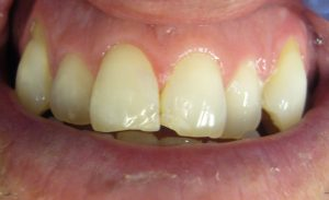 before-composite-veneers-soins-dentaires-esthétiques