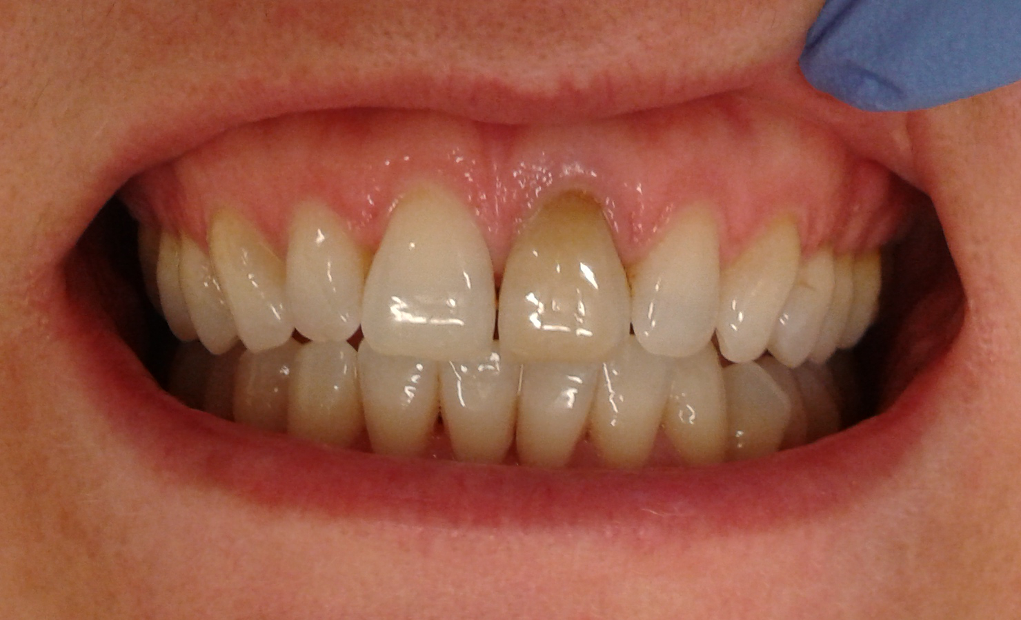 Internal Whitening French Dentist In Kensington London