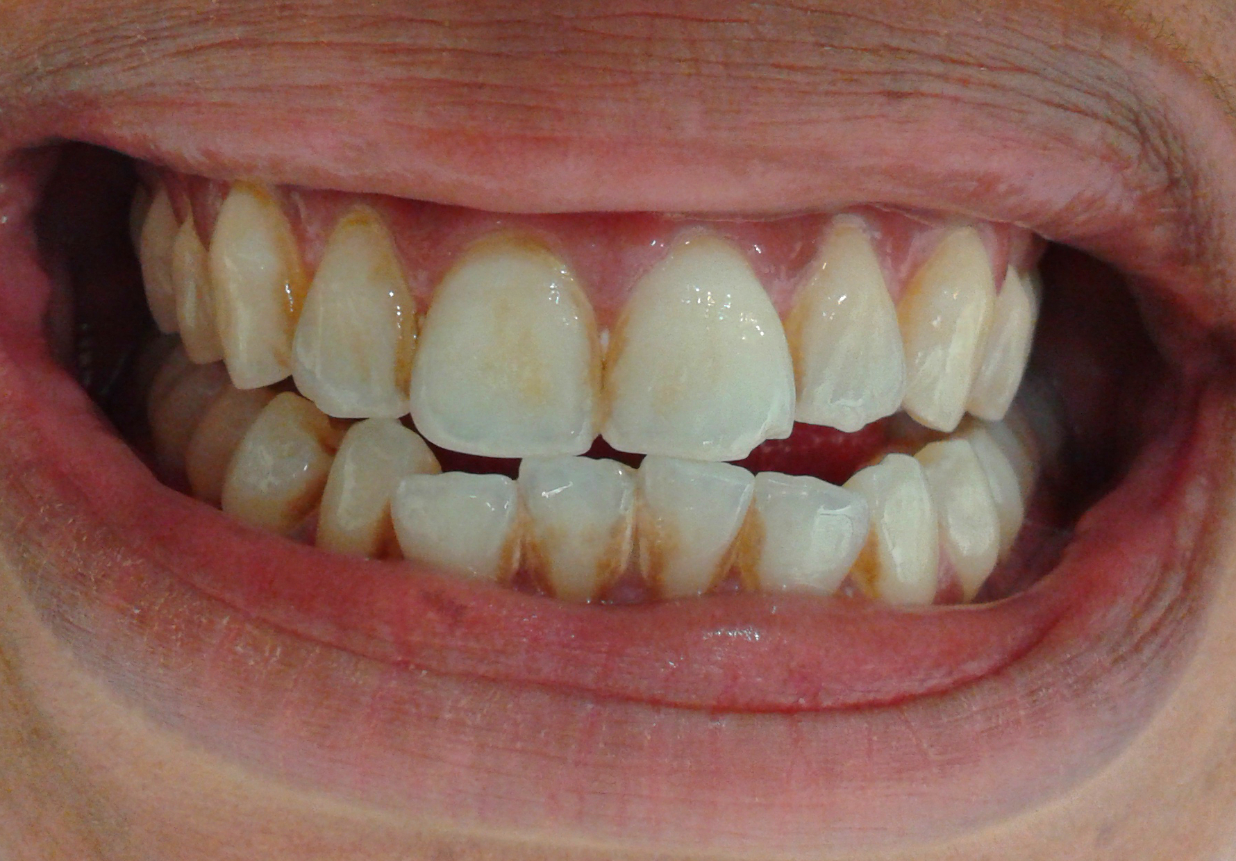 tooth whitening before and after french dentist in. Black Bedroom Furniture Sets. Home Design Ideas