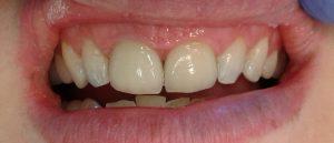new-porcelain-veneers-facettes-dentaires