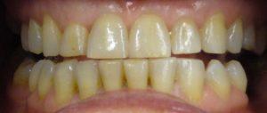 grinding-teeth