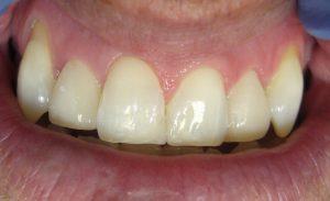 after-composite-veneers-soins-dentaires-esthétiques