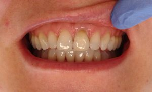 after-internal-whitening-bleaching-blanchiment-interne