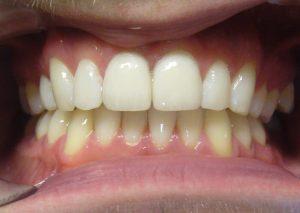 after-porcelain-veneers-facettes-dentaires