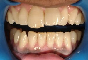 before-cosmetic-sculpture-tooth-dent