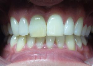 before-porcelain-veneers-facettes-dentaires