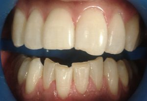 before-tooth-contouring-tooth-dent