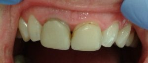 old-veneers-facettes-dentaires
